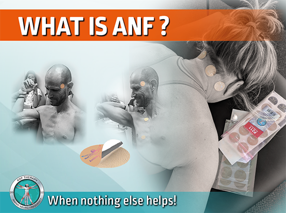 What is ANF Therapy?